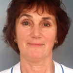 Edina Kurtovic är specialistläkare inom rehabiliteringsmedicin och hjälper dig med rehab och behandling av smärta
