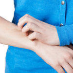 Psoriasis är en vanlig kronisk hudsjukdom som idag drabbar ungefär 300 000 svenskar. Drabbade kan behöva individuell behandling under långa perioder av livet.