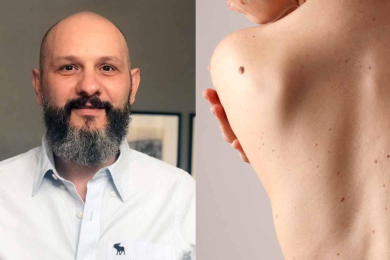 Hudspecialisten Lampros Ntintis malignt melanom